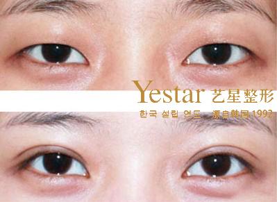 韩式双眼皮对比_什么是韩式三点双眼皮-上海艺星整形医院