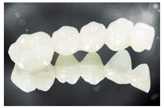 水晶全瓷牙,全瓷牙