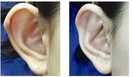 做招风耳矫正会影响听力吗