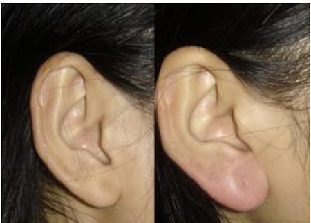 耳垂再造有什么方法