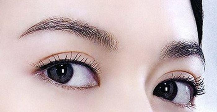 上海单眼皮变双眼皮要多少钱