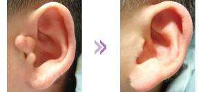 什么是副耳