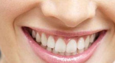 牙齿前突如何进行矫正比较好