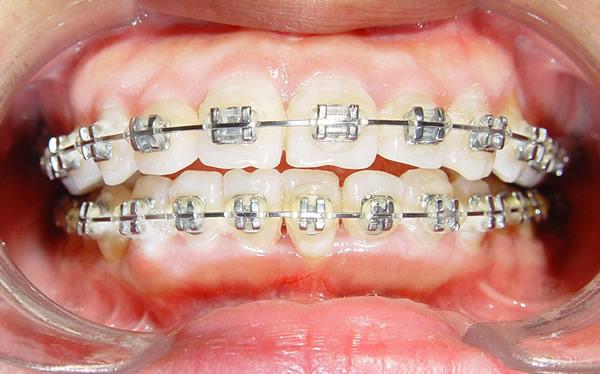 龅牙矫正有没有什么副作用