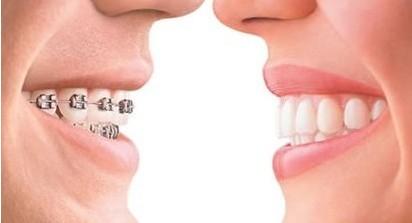 什么时间进行龅牙矫正比较好