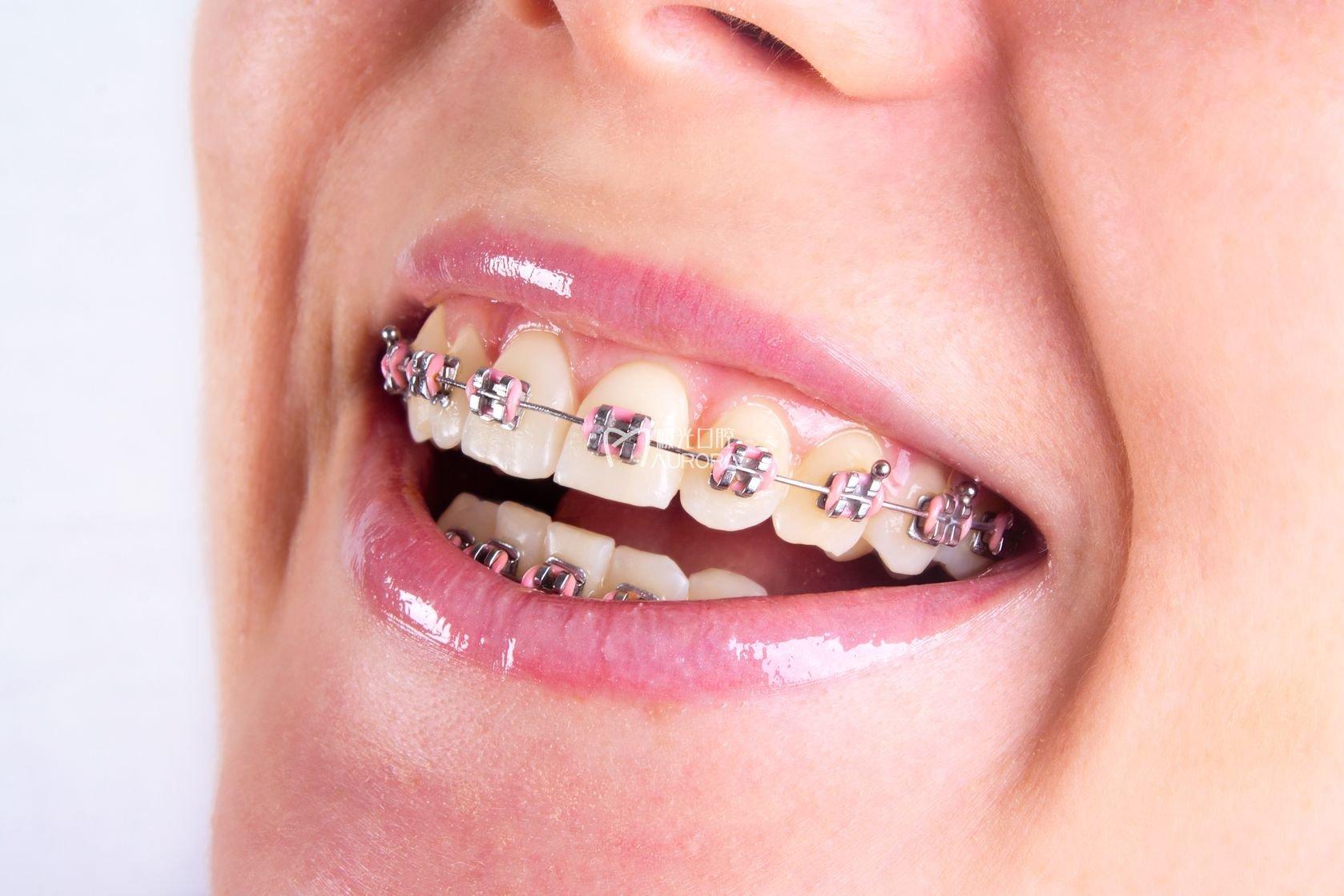 龅牙矫正常用的方法是什么
