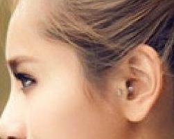 医师介绍丰耳垂术的方法