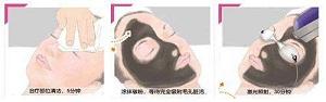 什么类型的皮肤可以做黑脸娃娃