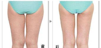 艺星腿部吸脂效果对比图