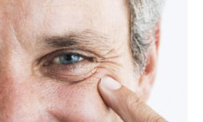 眼部皱纹形成的原因