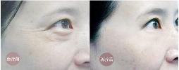 上海艺星去除眼部皱纹的效果
