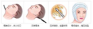面部吸脂图示