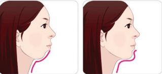 假体垫下巴后的护理