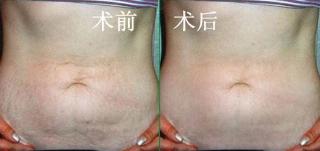 艺星热玛吉祛妊娠纹效果