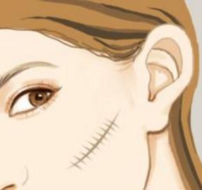 激光祛疤做几次有效