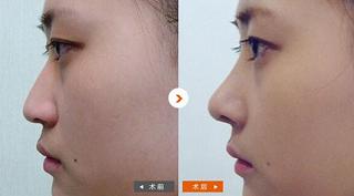 隆鼻效果案例