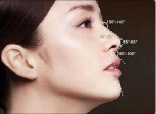 鼻部手术整形