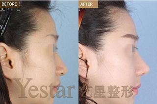 鼻部综合手术效果