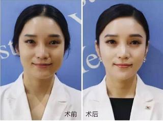 瘦脸效果案例