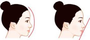 假体隆鼻效果的保持时间