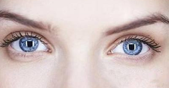 双眼皮美丽