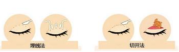 双眼皮手术的方法