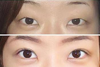 双眼皮案例对比