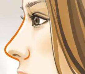 假体隆鼻后的护理