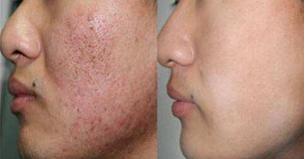 光子嫩肤去痘印前后对比图