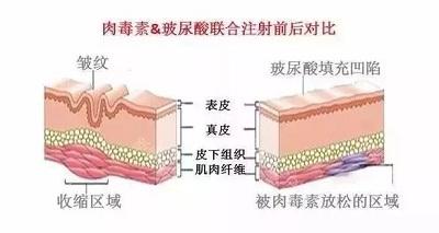 玻尿酸和注射除皱