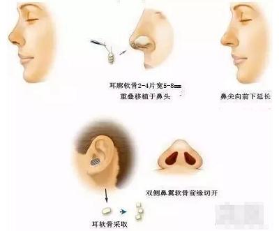 隆鼻肋软骨隆鼻