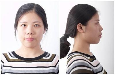 艺星隆鼻手术的优势
