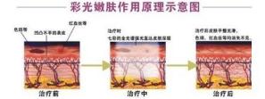 上海艺星彩光嫩肤为你找回嫩滑肌肤