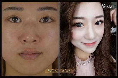 隆鼻前后的效果对比