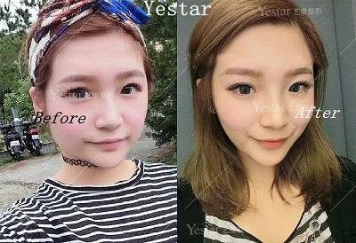 注射瘦脸的前后对比效果明显