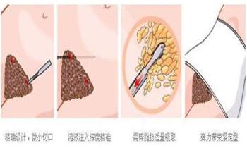 腰腹吸脂的原理过程