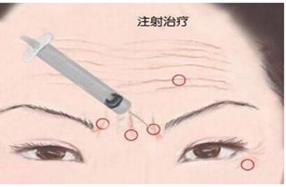 眼周皱纹注射除皱