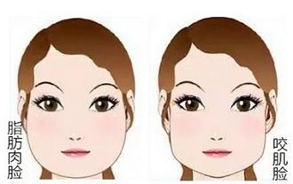脂肪型的大脸可以吸脂来瘦