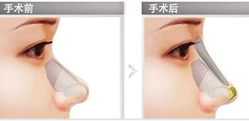 假体隆鼻材料好可以维持很久