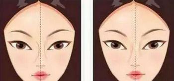 假体隆鼻假体歪斜示意