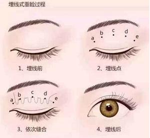 埋线双眼皮的过程