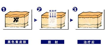皮秒激光祛斑的原理