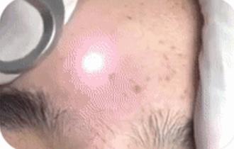 正在祛斑的皮秒激光仪器