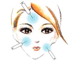 玻尿酸可以水光注射嫩肤