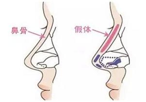 上海隆鼻用假体隆鼻