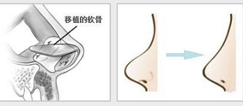 上海用自体软骨隆鼻