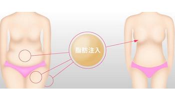 上海自体脂肪隆胸贵不贵