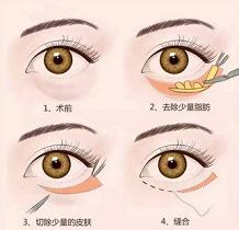 外切法手术去眼袋