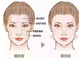 自体脂肪面部填充能让皮肤变好