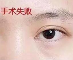 双眼皮修复难不难